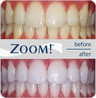 zoom-teeth-whiting-before-and-after