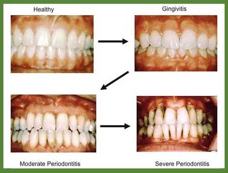 gum-disease-before-and-after
