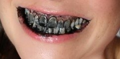photo of charcoal teeth whitening warning dangerous Dunedin Dentist