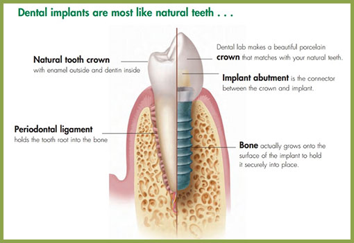dental-implant-tooth