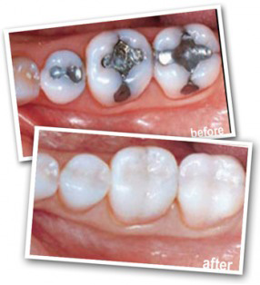 white-fillings-1