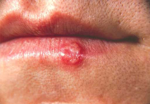 herpes-in-mouth-symptoms