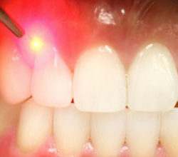 hopkins-dentistry-laser-dentistry