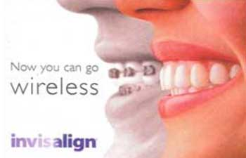 Profile of teeth with invisalign braces.