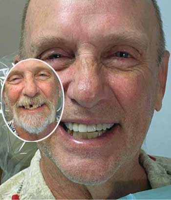 Photo of a Before and After Dental Makeover.